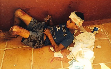 A young boy lies on the floor of a restaurant in a hotel, where his wounds have been treated, following the attack (Robert Tait)