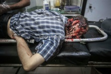 A dead body of Syrian civilian lies down on a trolley as he arrives at the emergency ward of a hospital after has been killed by mortar shelling at Arkub district in Aleppo City.